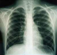 Roentgenthorax